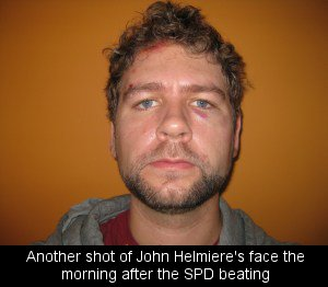 Another shot of John Helmiere's face the morning after the SPD beating